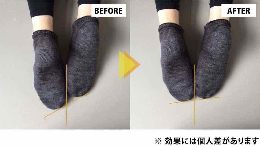 仙台のコクリの整体|骨盤の改善ビフォーアフターその2