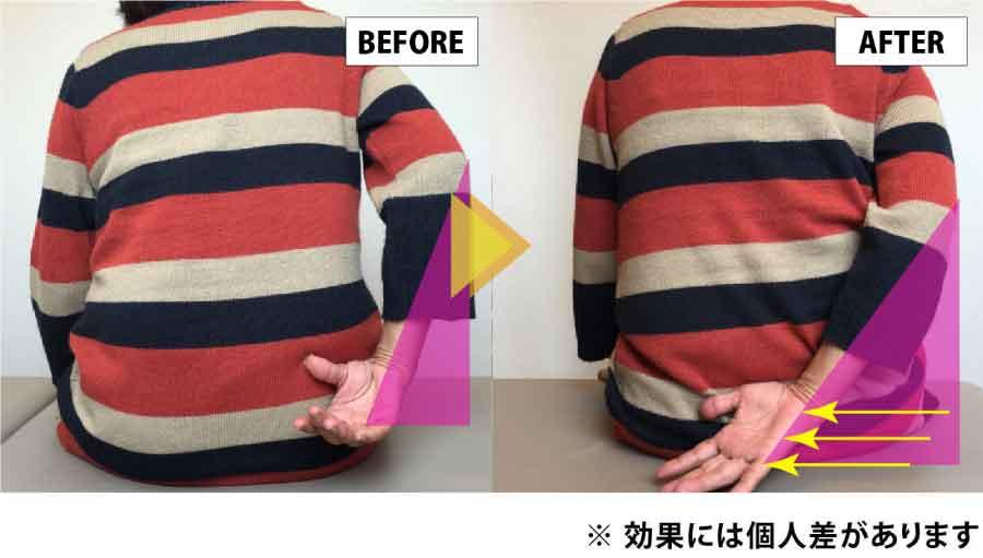 仙台のコクリの整体|肩関節の改善ビフォーアフター