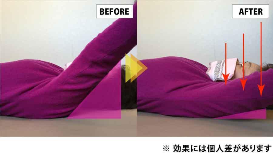 仙台のコクリの整体|肩関節の改善ビフォーアフターその2